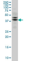 TRIB2 Antibody | 1B1 gallery image 2