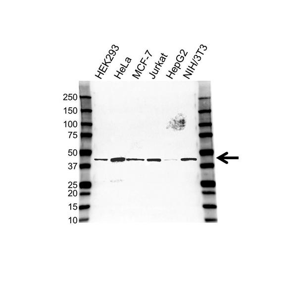 Tropomodulin 3 Antibody (PrecisionAb<sup>TM</sup> Antibody) gallery image 1