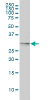 Tropomyosin 4 Antibody | 4E4-1D2 gallery image 1