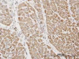Troponin I Antibody | 1E7 gallery image 1