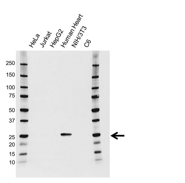 Troponin I (Cardiac) Antibody (PrecisionAb<sup>TM</sup> Antibody) gallery image 1