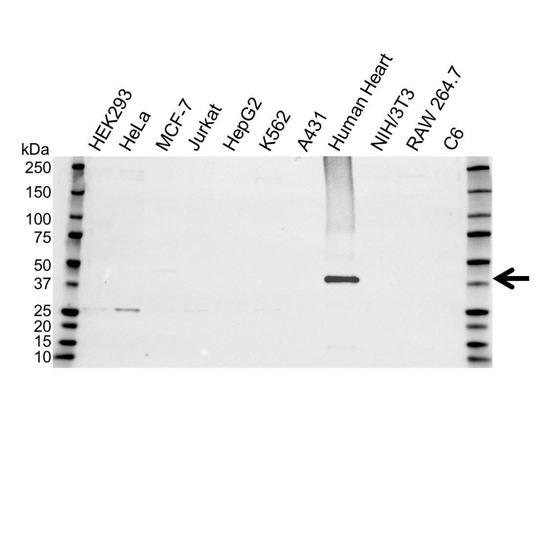 Troponin T Antibody (PrecisionAb<sup>TM</sup> Antibody) gallery image 1