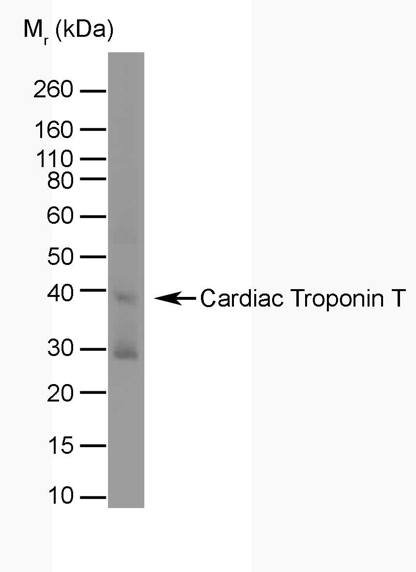 Troponin T Cardiac Isoform 1 Antibody | TT44 (BGN/1288/44) gallery image 1