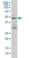 TSG101 Antibody | 5B7 gallery image 3