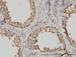 Tubulin Alpha 4A Chain Antibody | 2E11 gallery image 1