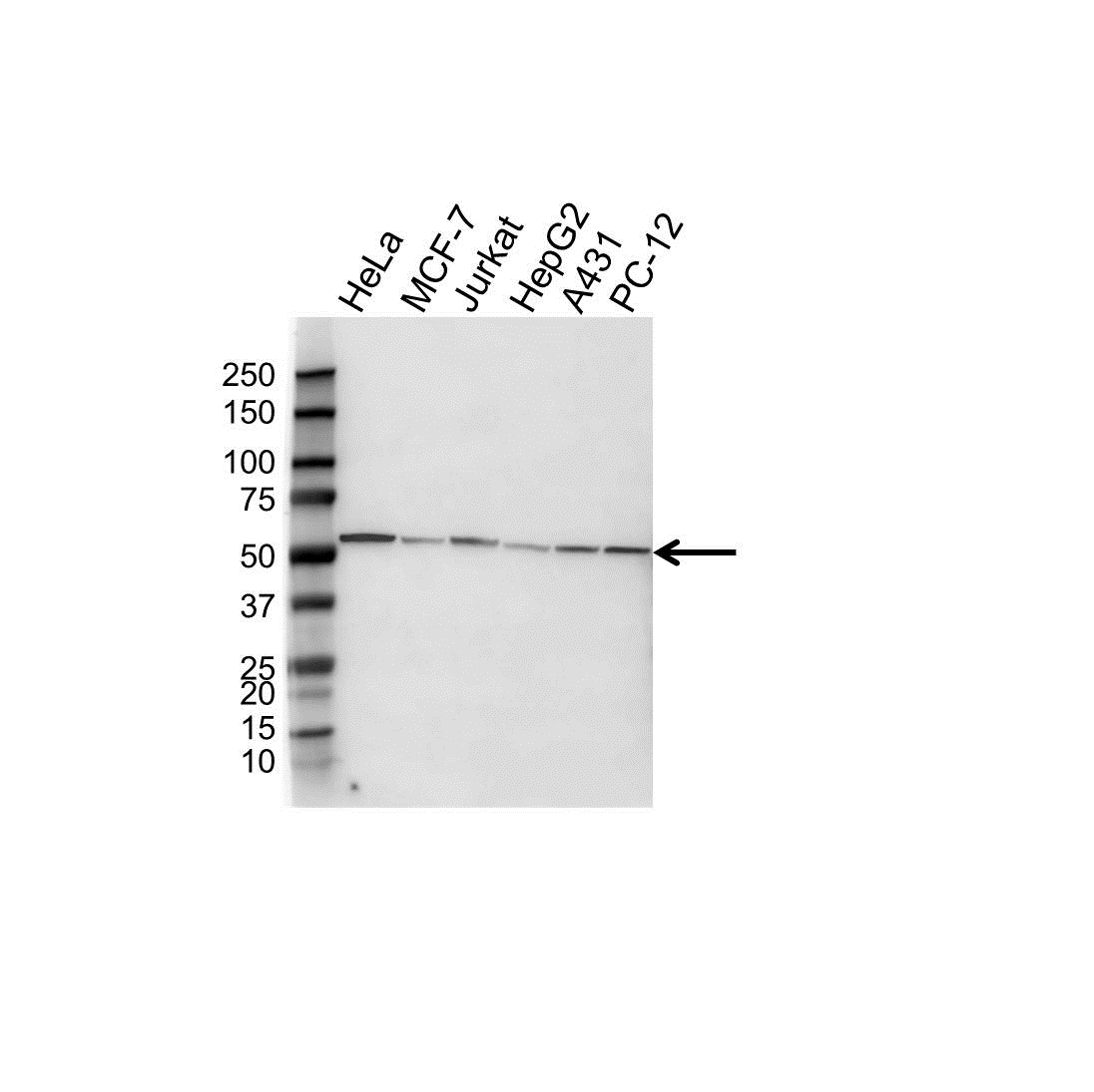 Tubulin Alpha 8A Chain Antibody (PrecisionAb<sup>TM</sup> Antibody) | OTI2G6 gallery image 1