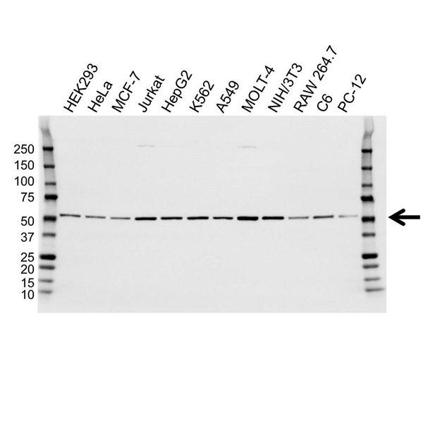 Tubulin Beta 2A Chain Antibody (PrecisionAb<sup>TM</sup> Antibody) gallery image 1