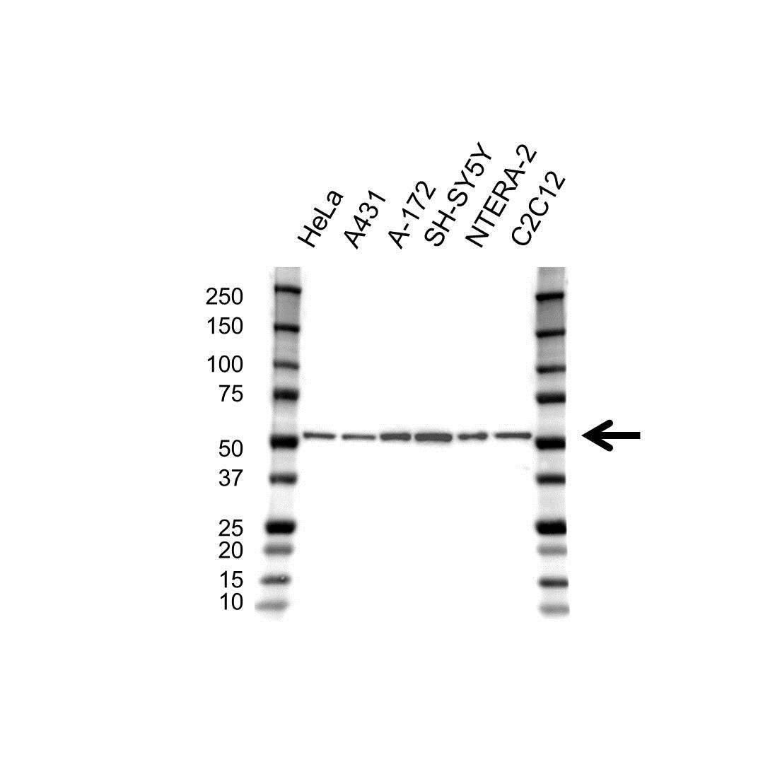 Tubulin Beta 2B Antibody (PrecisionAb<sup>TM</sup> Antibody) gallery image 1