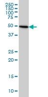 Tubulin Beta 2C Antibody | 1G3 gallery image 1