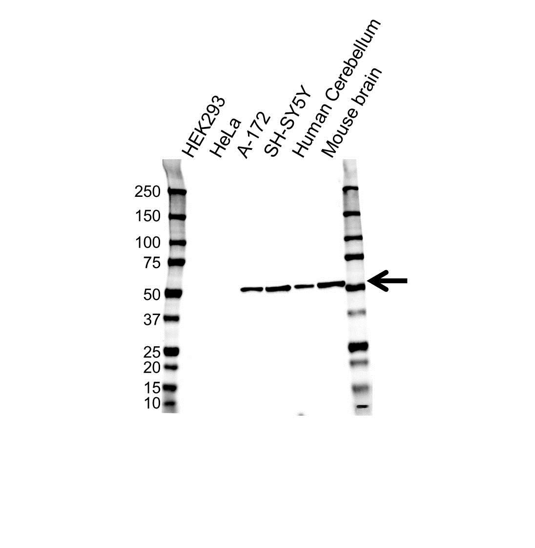 Tubulin Beta 3 Antibody (PrecisionAb<sup>TM</sup> Antibody) | OTI5H2 gallery image 1
