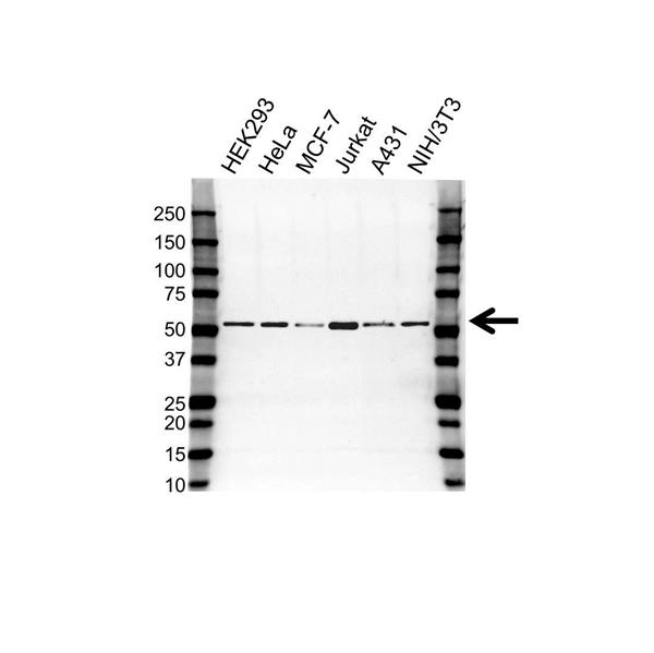 Tubulin Beta Chain Antibody (PrecisionAb<sup>TM</sup> Antibody) gallery image 1