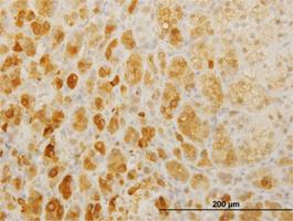 TWIST2 Antibody   3C8 gallery image 1