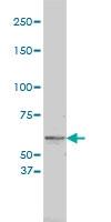 Tyrosinase Antibody | 2A2-F4 gallery image 1