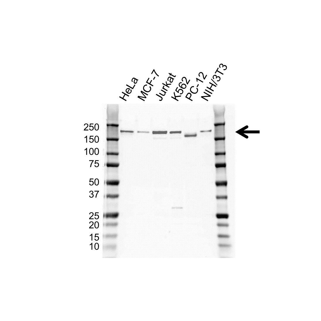 Tyrosine-Protein Kinase BAZ1B Antibody (PrecisionAb<sup>TM</sup> Antibody) gallery image 1