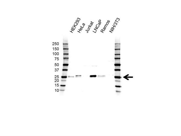 UBE2E2 Antibody (PrecisionAb<sup>TM</sup> Antibody) gallery image 1