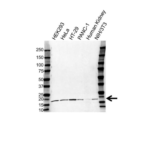 UBE2V1 Antibody (PrecisionAb<sup>TM</sup> Antibody) gallery image 1