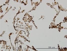 UBE3A Antibody   2F6 gallery image 1