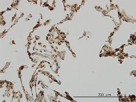 UBE3A Antibody | 2F6 gallery image 1