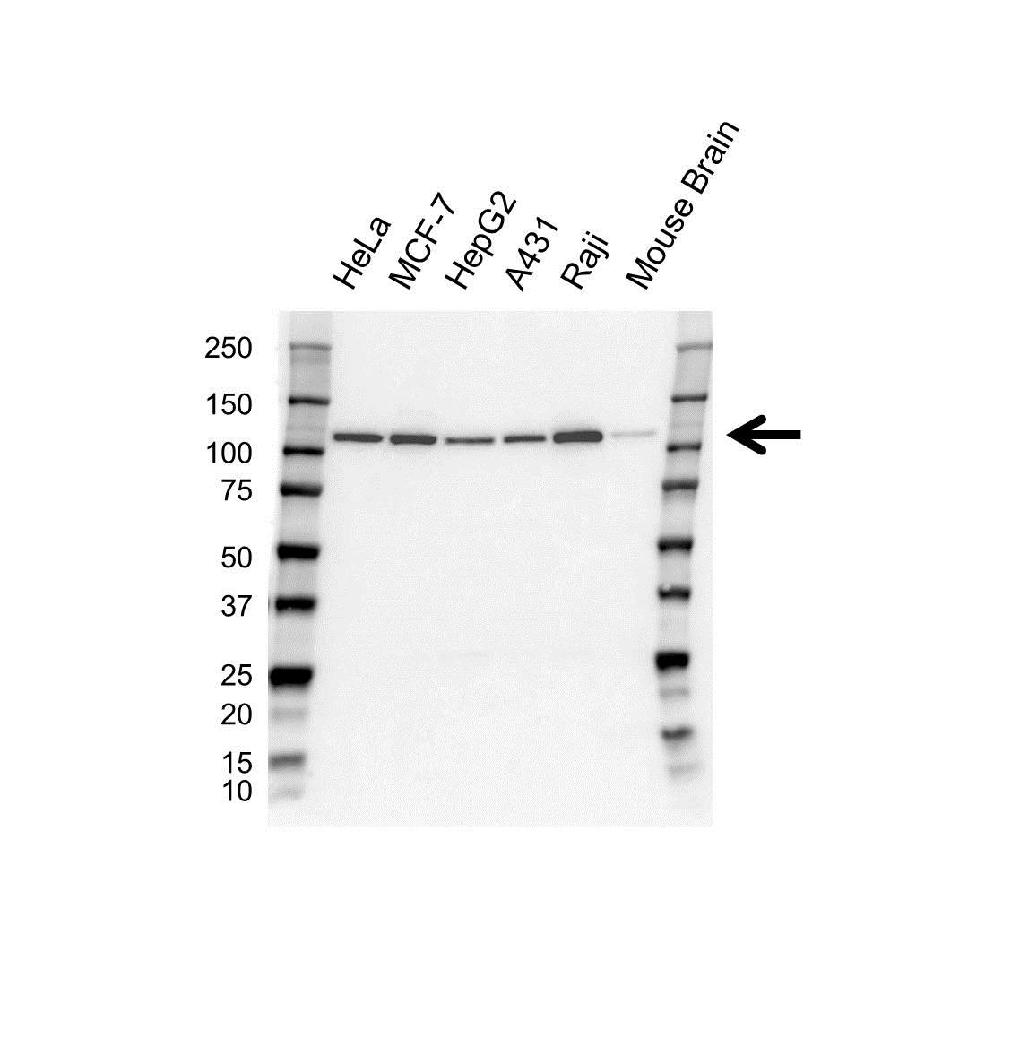 USP16 Antibody (PrecisionAb<sup>TM</sup> Antibody) gallery image 1