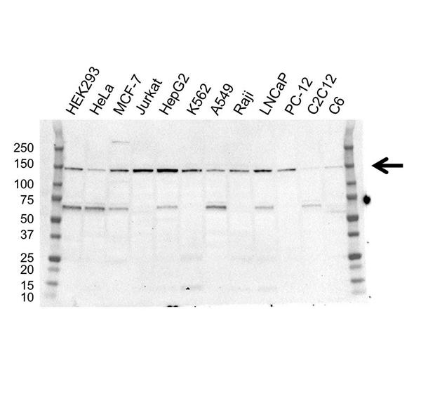 USP7 Antibody (PrecisionAb<sup>TM</sup> Antibody) | OTI1F12 gallery image 1