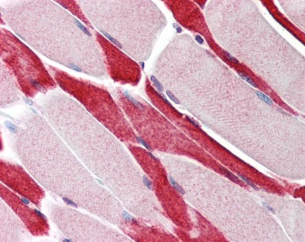 USP7 Antibody gallery image 1