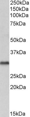 VDAC2 Antibody gallery image 2
