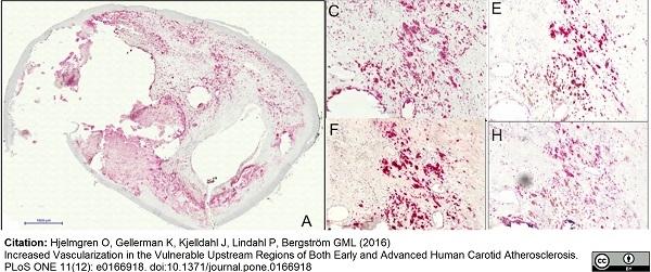 VEGF Antibody gallery image 1