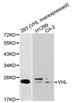 Vhl Antibody gallery image 1