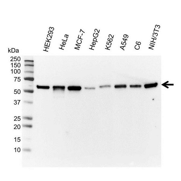 Vimentin Antibody (PrecisionAb<sup>TM</sup> Antibody) gallery image 1