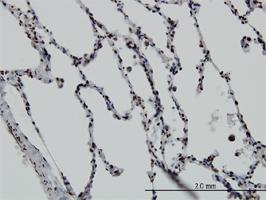 Vitamin D Receptor Antibody   2F4 gallery image 1