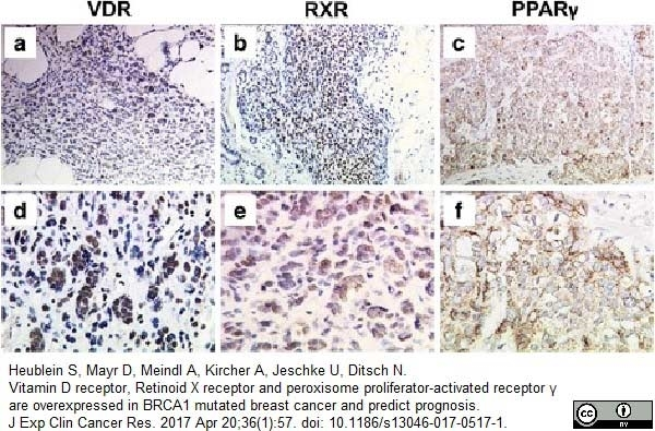 Vitamin D Receptor Antibody | 2F4 gallery image 3