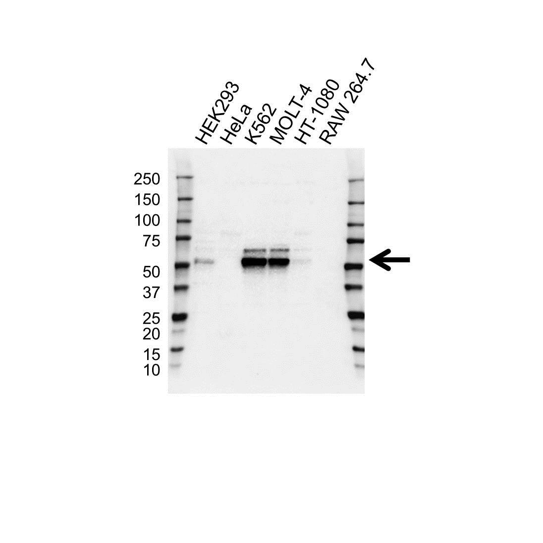 Wilms Tumor 1 Antibody (PrecisionAb<sup>TM</sup> Antibody) gallery image 1