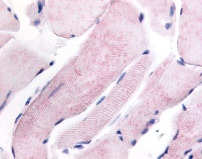 WNK1 Antibody gallery image 1
