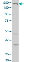 WRN Antibody | 3C11 gallery image 1