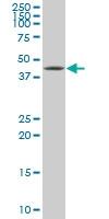 XBP1 Antibody | 3F5 gallery image 1