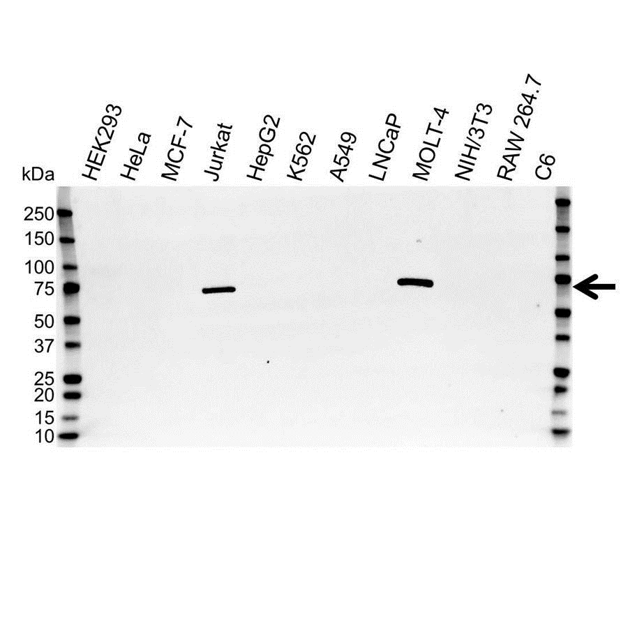 ZAP 70 Antibody (PrecisionAb<sup>TM</sup> Antibody) gallery image 1
