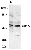 ZIP Kinase Antibody gallery image 1