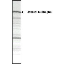 Huntingtin Antibody | HDC8A4 gallery image 1