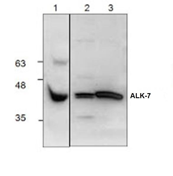 ALK-7 Antibody gallery image 1