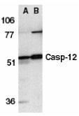 Caspase-12 Antibody gallery image 2