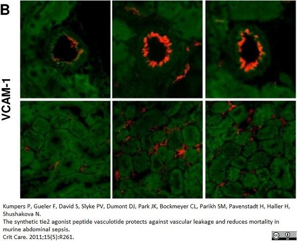 CD106 Antibody | MVCAM A (429) gallery image 2