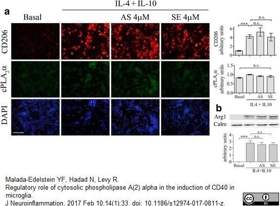 CD206 Antibody | MR5D3 gallery image 14