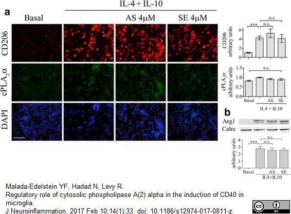 CD206 Antibody | MR5D3 gallery image 8