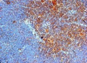 CD289 Antibody gallery image 1