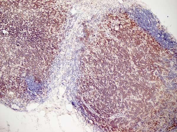 CD3 Antibody | KT3 gallery image 9