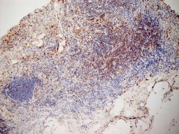 CD3 Antibody | KT3 gallery image 8