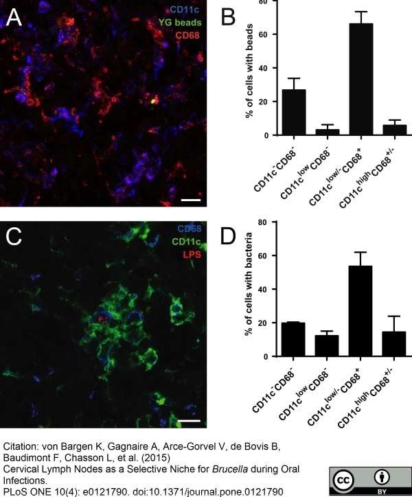 CD68 Antibody | FA-11 thumbnail image 26