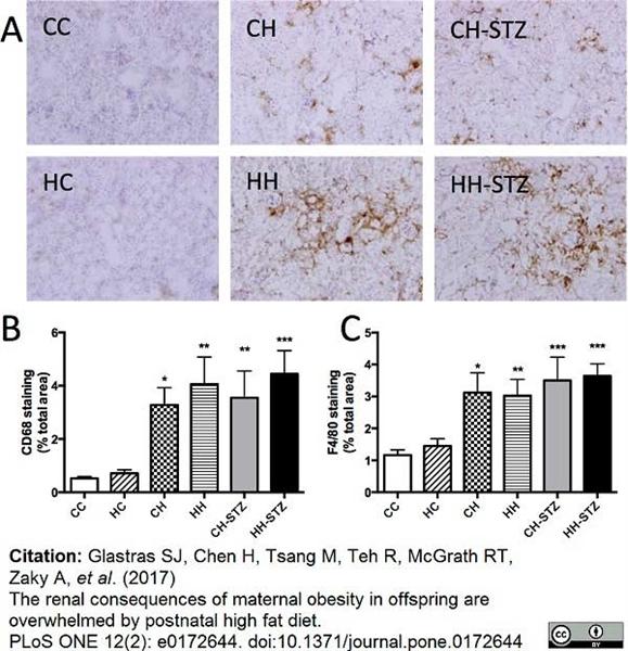 CD68 Antibody | FA-11 gallery image 40