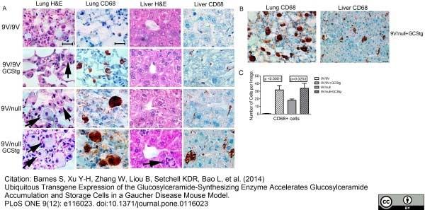 CD68 Antibody | FA-11 gallery image 24