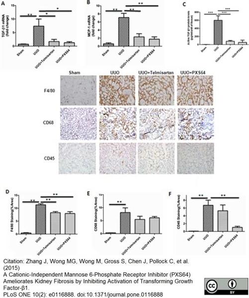 CD68 Antibody | FA-11 gallery image 25